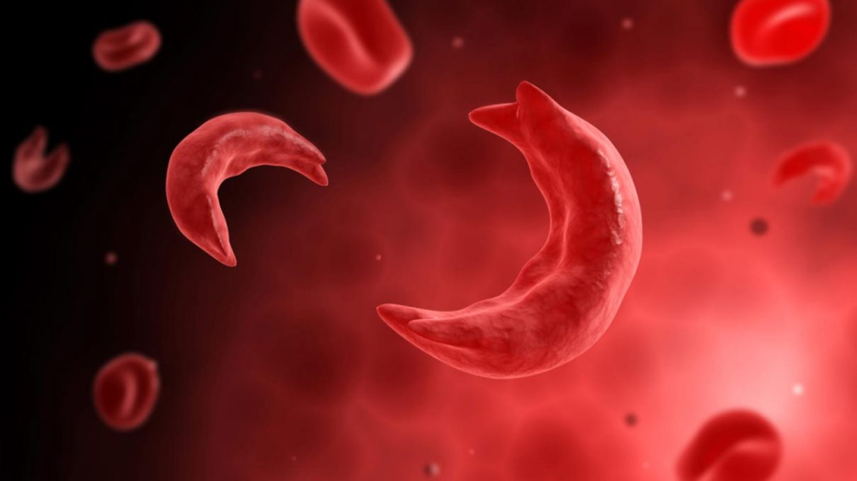 What It's Like To Live With Sickle-Cell - Folks